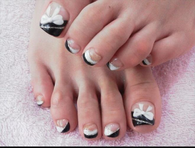Black And White Bows Toe Nail Design Fmag