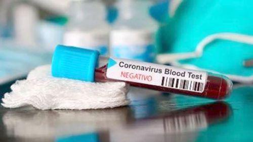 No hay nuevos casos de Covid-19