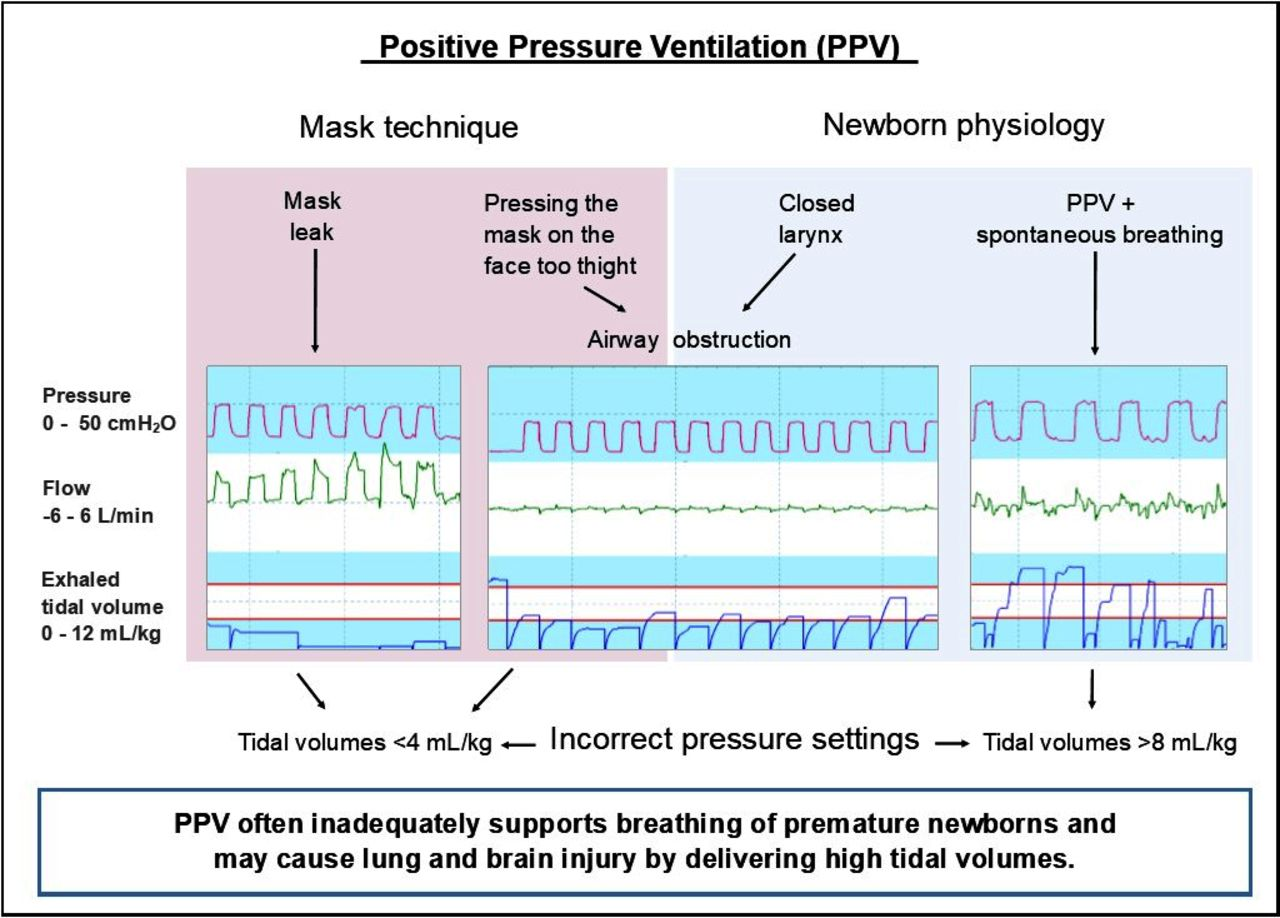 Supporting Breathing Of Preterm Infants At Birth A Narrative Review