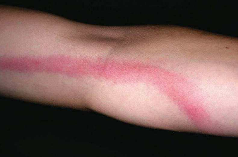Blood Poisoning Rash