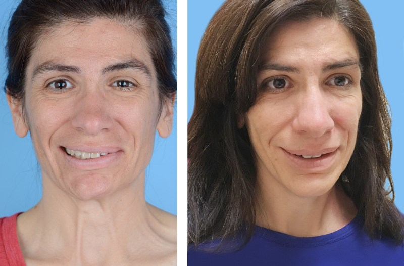 Before and after photo of woman with facial paralysis