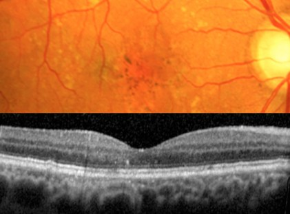 Same patient, one year after statin treatment: The color photo and OCT scan showing complete disappearance of the drusen.