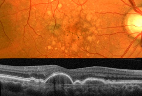 Age-related macular degeneration before and after photo