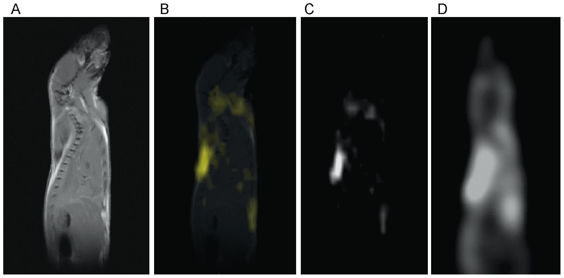 In Vivo Noninvasive Detection Of Brown Adipose Tissue Through Intermolecular Zero Quantum Mri
