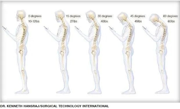 Smartphone? A pain in the neck!