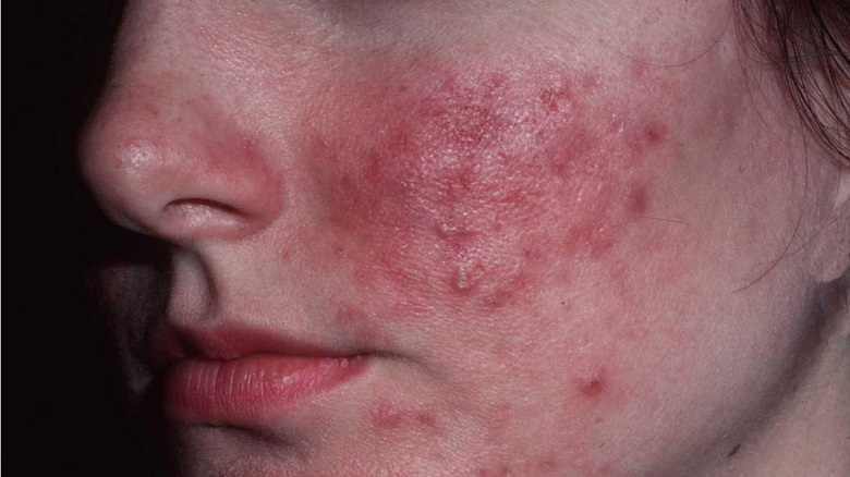 Get Rid of Red Spots on Facae