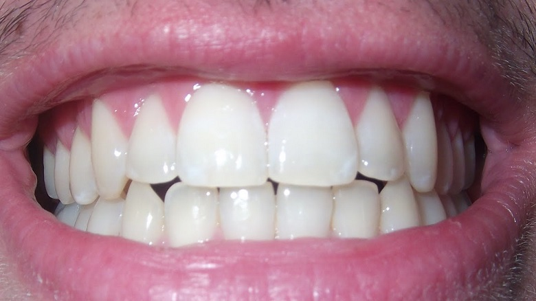 How to Whiten Teeth Naturally with Home Remedies