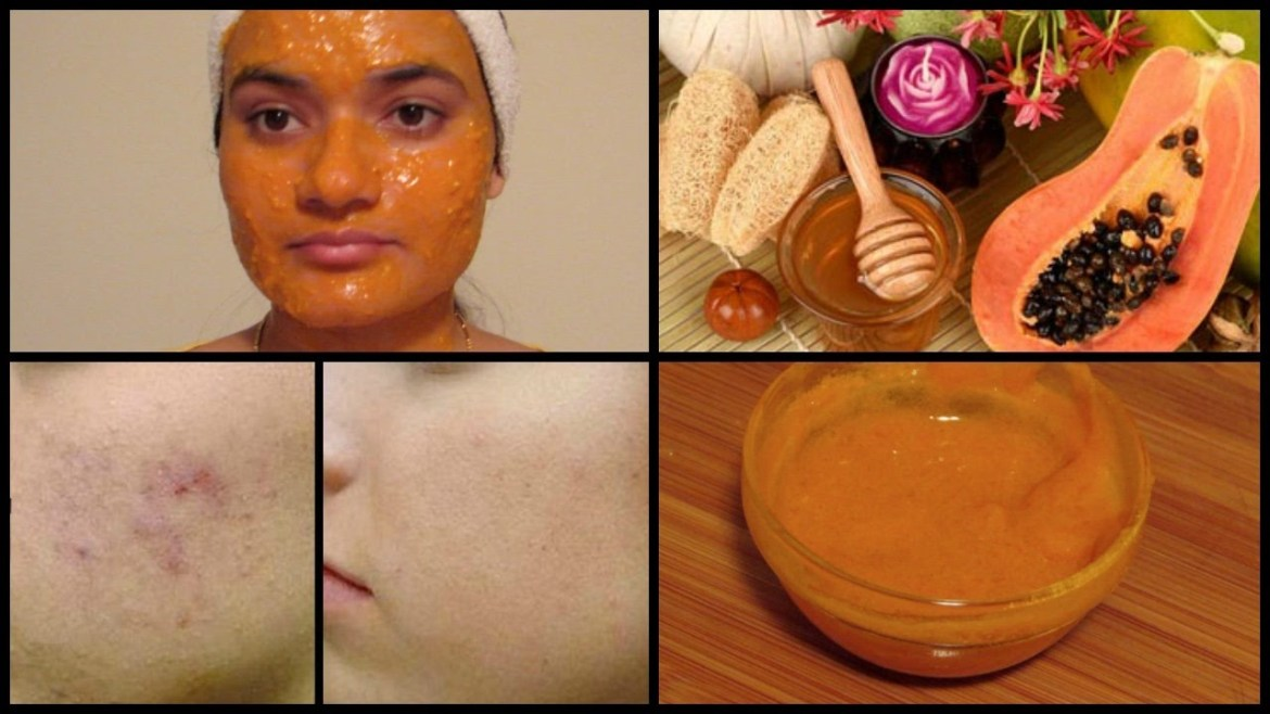 Papaya Face Pack for Acne