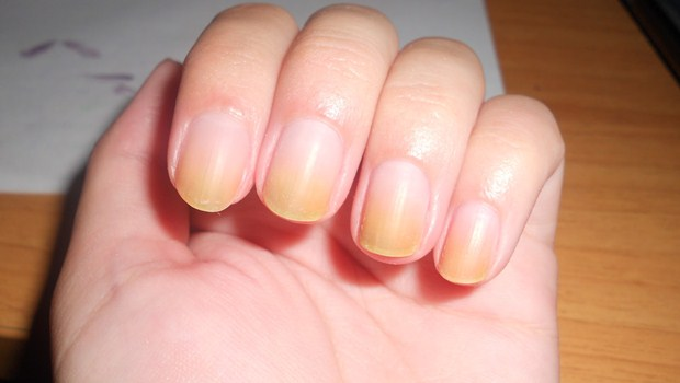 how to get rid of yellow nails