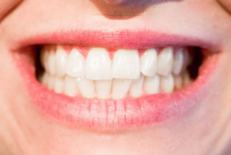 home remedies to get rid of cavities