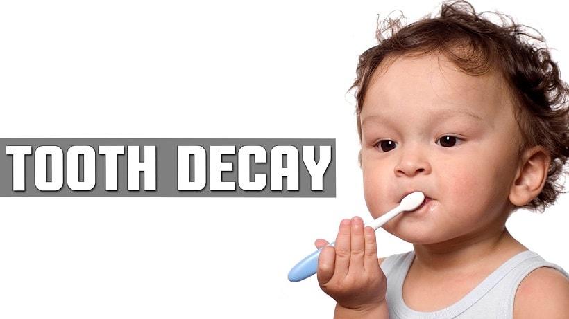 toddler tooth cavity