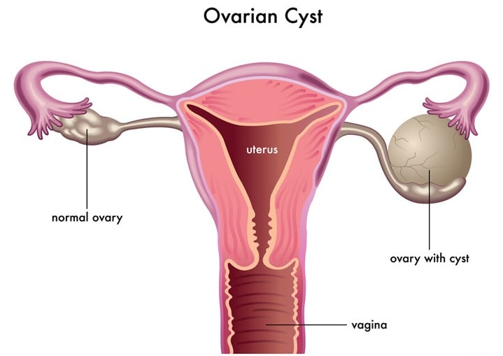 How To Naturally Cure Ovarian Cancer