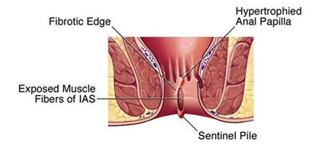 sex-what-is-anal-fissures