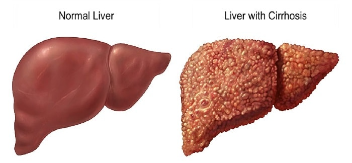 home remedies for Cirrhosis of Liver