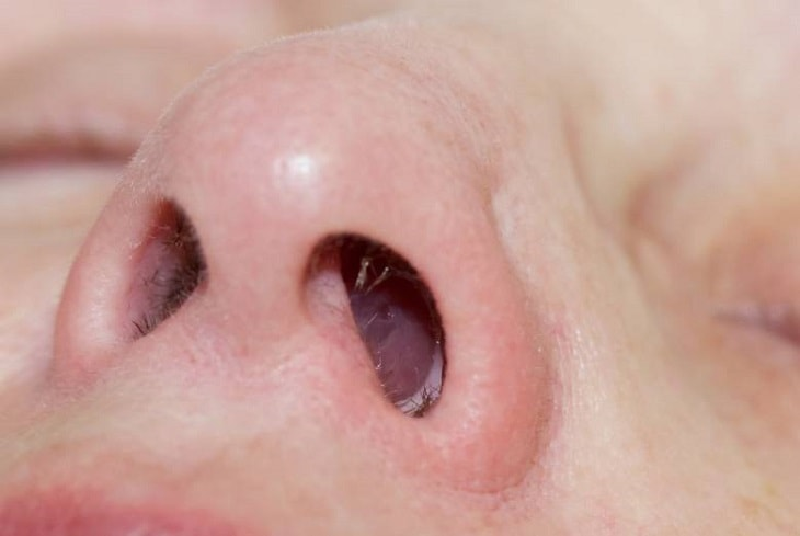 Sores In Nose Causes Treatments And Remedies For Natural Cure