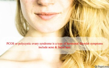 pcos symptoms affects women only