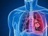 Governo Federal lança Plano Nacional Pelo Fim da Tuberculose
