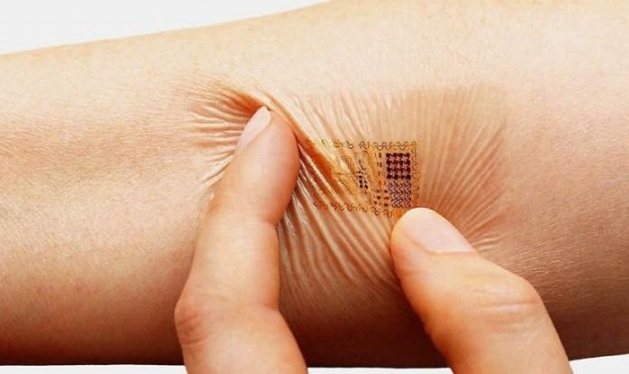 Microchip na pele
