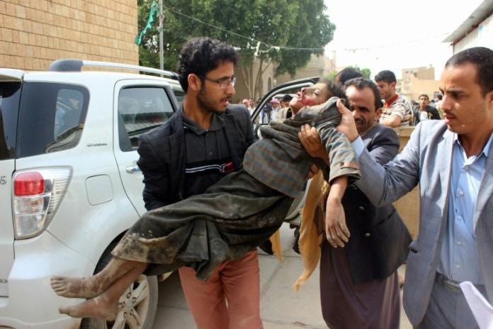 Criança é levada para o hospital após ficar ferida no ataque aéreo no Iêmen