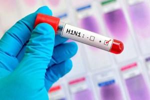 Read more about the article Duas mulheres morrem e número de vítimas de gripe sobe para 26 em MS