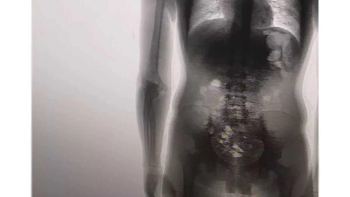 Read more about the article Preso é flagrado com 8 celulares, carregadores, cabos e chips dentro no corpo em MT