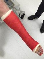 The second sexy red fibreglass cast