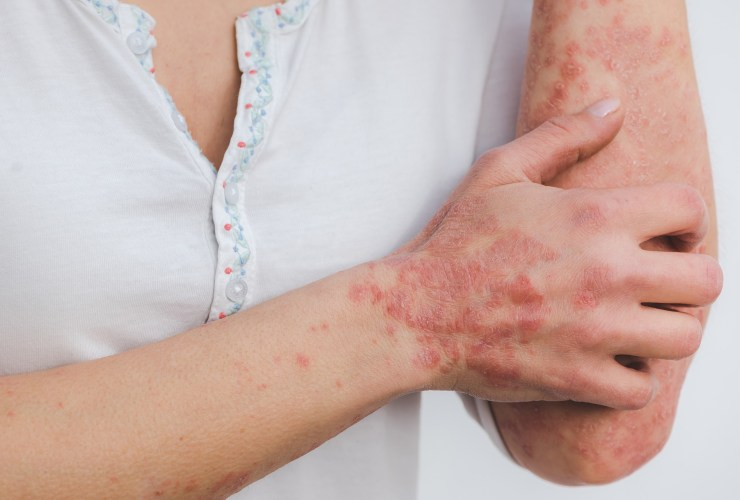 Psoriasis: The Best Diet To Reduce The Flare-Ups