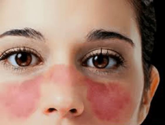 Lúpus 1 - Lúpus: Causas, Sintomas e Tratamentos