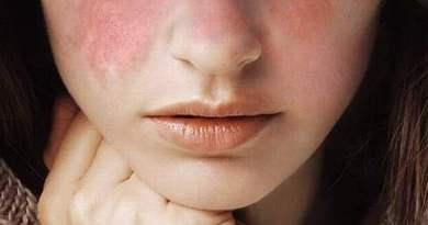 LUPUS 2 - Lúpus: Causas, Sintomas e Tratamentos