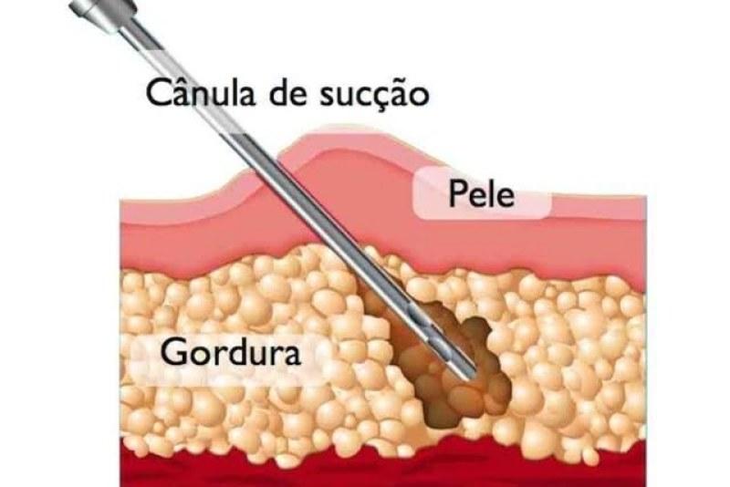 lipoaspiração 3 - Lipoaspiração: Mitos e Verdades Sobre Esse Tipo de Cirurgia Estética