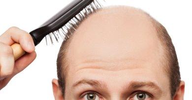CALVÍCIE E QUEDA DE CABELO - Calvície e queda de cabelo: causas, sintomas e tratamentos