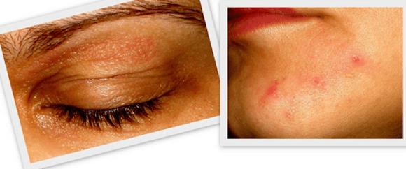 alergia esmalte - Alergia a Esmalte: Causas, Tratamento e Prevenção