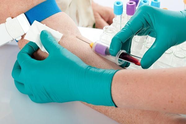 exame de sangue como interpretar 1 - Como interpretar exame de sangue? Saiba Mais