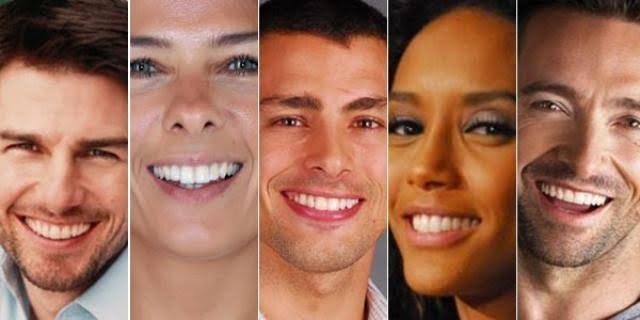 facetas de porcelana 5 - Facetas de porcelana: sorriso bonito sem aparelho!