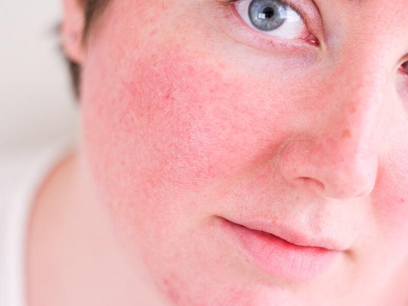 rosácea - 7 Problemas de Pele Mais Frequentes: saiba quais são