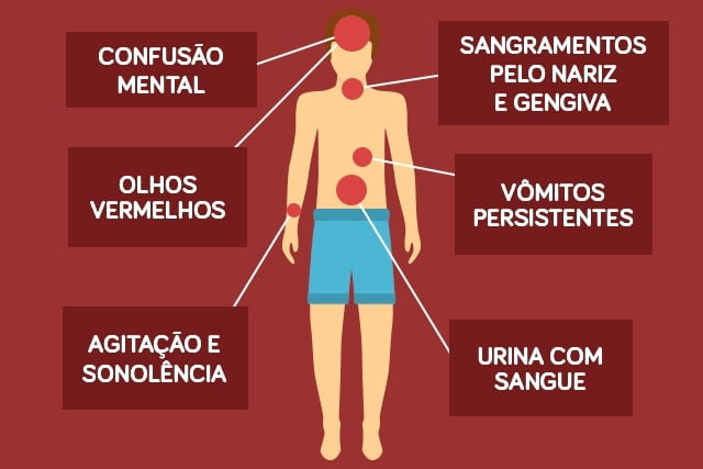 DENGUE HEMORRAGICA - Prevenir a dengue: saiba como deixar o mosquito longe!
