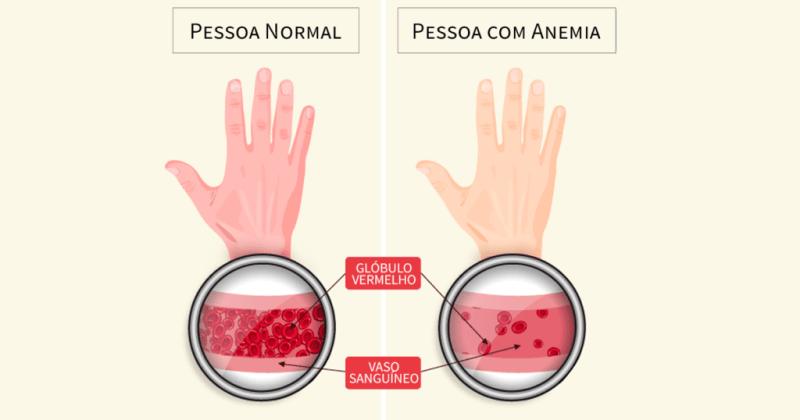 ANEMIA 3 1024x538 - Vitaminas para quem tem anemia: saiba como se livrar desse mal!