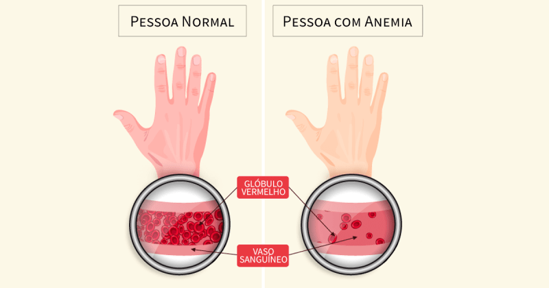ANEMIA 3 - Vitaminas para quem tem anemia: saiba como se livrar desse mal!