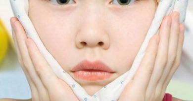 caxumba 2 - Caxumba: saiba tudo sobre essa doença e suas graves consequências