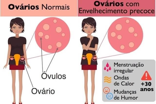 meno 3 - Como aliviar sintomas da menopausa? Saiba lendo o artigo.