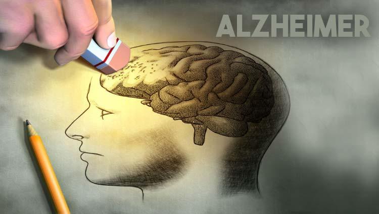 3 20 - O que é Alzheimer? Causas? Tratamento?Prevenção?