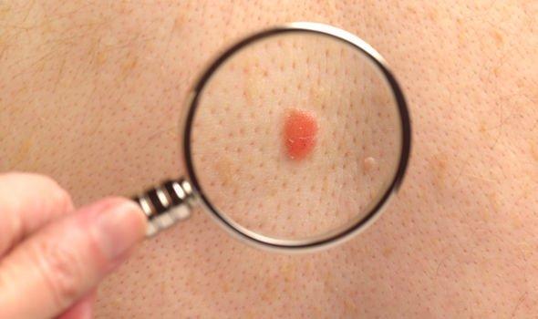 cancer pele 6 - Câncer de pele: quais são os tipos? Como prevenir?