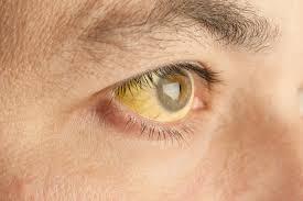 1 12 - Tipos de hepatite e seus sintomas: saiba tudo sobre essa doença