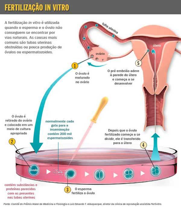 2 5 - O que é fertilização in vitro? Por que a chance de ter gêmeos é maior?