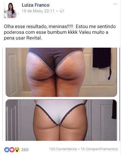Fonte da Saude Revital depoimento Luiza Franco - Revital Funciona Mesmo? Como Acabei com a Celulite! - Segredo das Famosas!