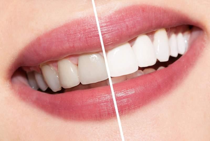 fonte da saude Clareamento Dental Natural dentes brancos 1024x687 - Benefícios do Clareamento Dental - Sorriso Bonito e Dentes Saudáveis Sempre