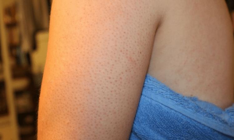6 - Problemas de pele no verão: saiba quais são e quando se preocupar