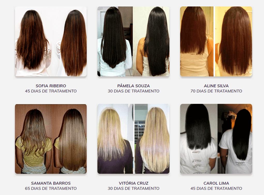Capelli Hair Evite Queda de cabelo Feminino depoimento de clientes