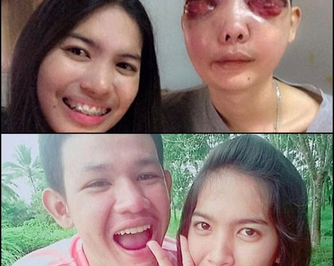 Girlfriend Stands By Her Cancer-Stricken Partner