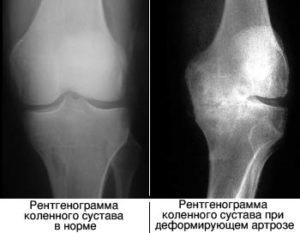 Ноет колено и не дает уснуть. Что делать в ситуации, когда болит ночью колено{q} Народные методы снятия боли